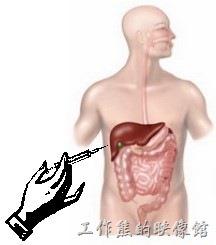 父親同意肝臟切片做病理報告
