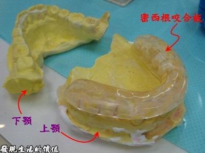 所以一般磨牙的治療都會製作一塊咬合板,它可以提供上下顎一個穩定的骨間關係,包含提供咀嚼肌的肌活動平衡所需的咬合關係,換句話說就是提供一定的強迫力量,促使你的嘴巴微張,另外它也可以避免牙齒接觸式的磨牙保護,簡單吧。