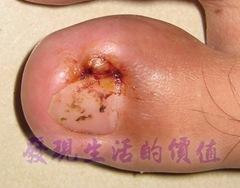 凍甲(台)/甲溝炎/趾甲內生症(ingrown toenail)