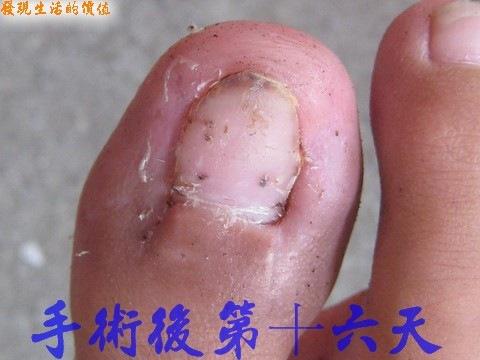 凍甲(台)/甲溝炎/趾甲內生症/腳趾甲刺到肉內(手術後第十六天)